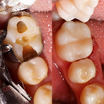 Non-metal Fillings