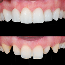 Arizona Dental Design Chandler S Personal Care Dentist For Happy Healthy Smiles